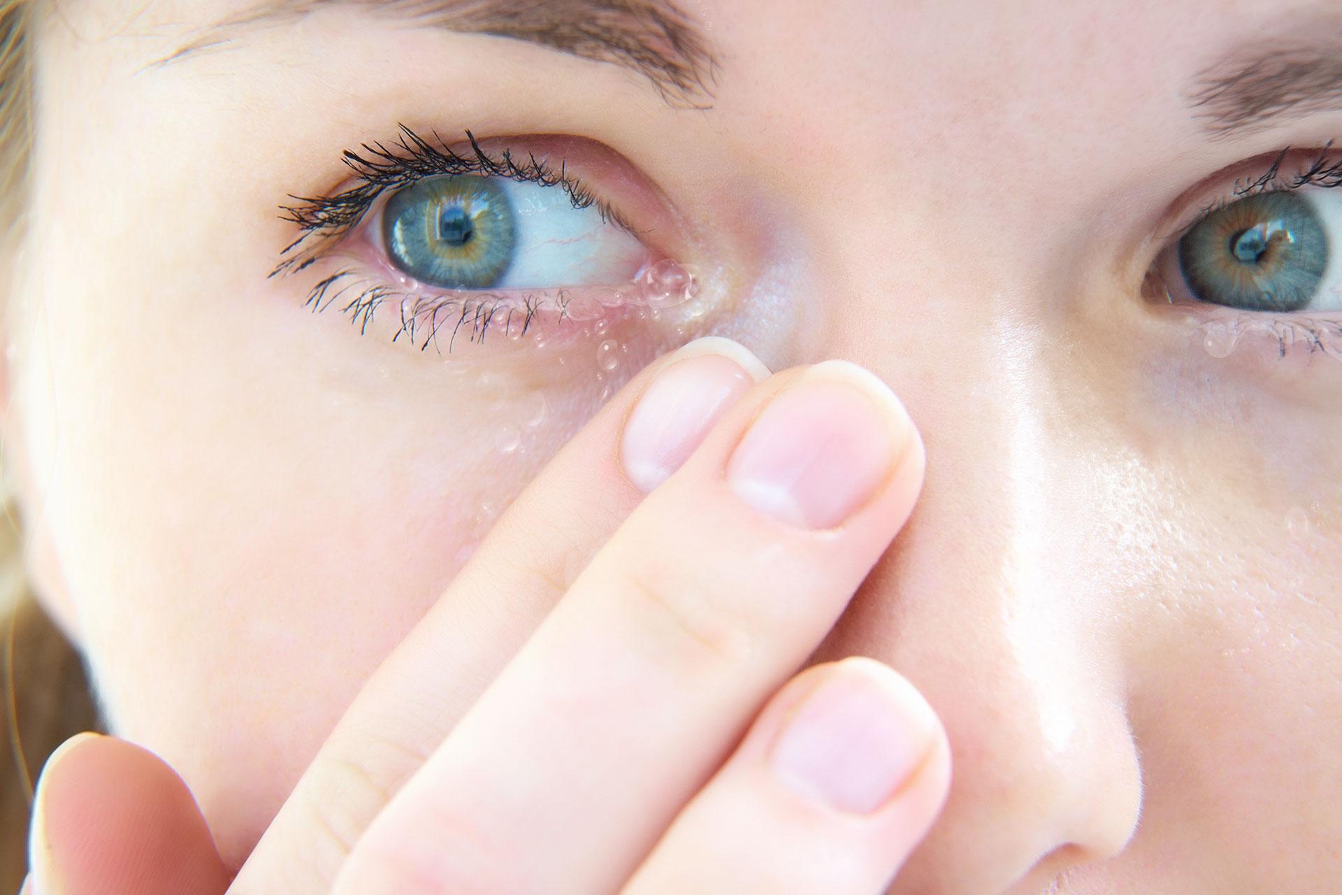 ögon som rinner